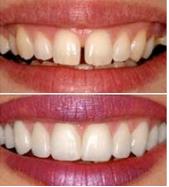 vaneer-north-ryde-dentist